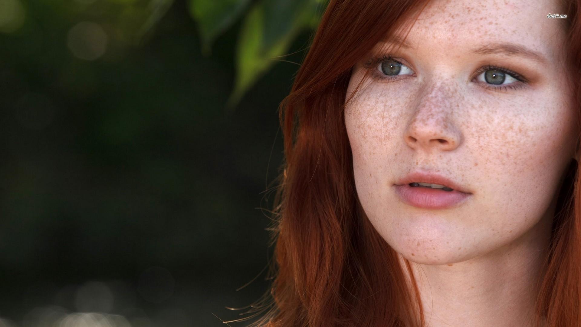 freckles women